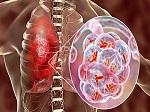curso Latinoamericano de Eliminación de la TB