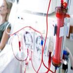 dialisis1-150x150