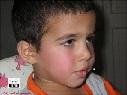 Niño con exantema