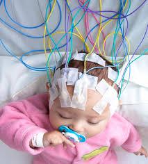neurocirugia2