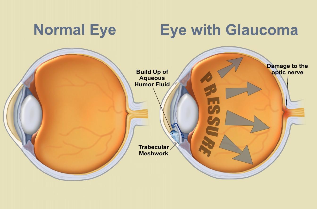 Resultado de imagen de glaucoma