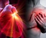 14427_cardiopatias