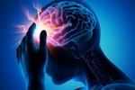 epilepsia-dolor de cabeza